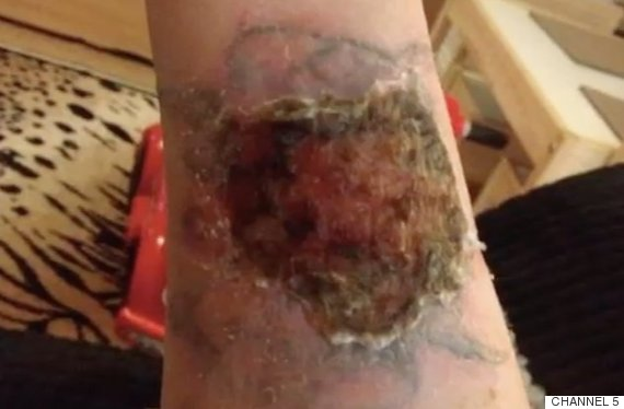 Methods of tattoo removal claritas laser clinic for Tattoo removal products