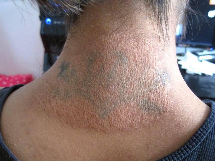 Salabrasion Tattoo Removal