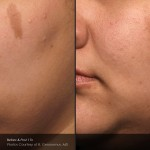 Claritas Laser Clinic, St Neots, Cambridgeshire | Treatment of Pigmentation