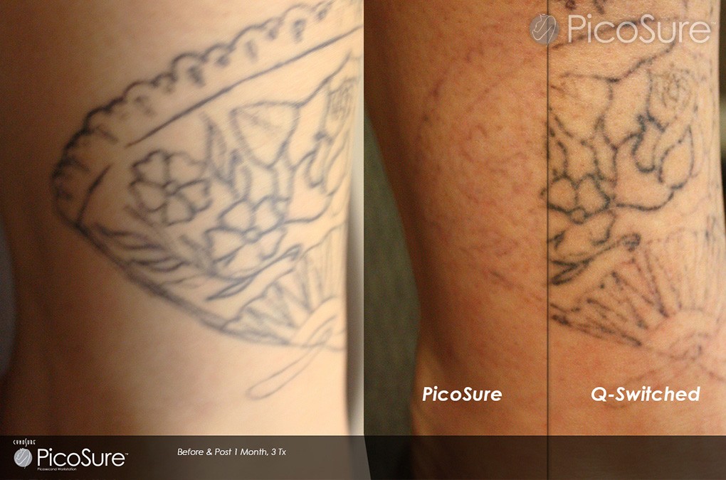 Which is the best tattoo removal method claritas laser for New tattoo removal technology
