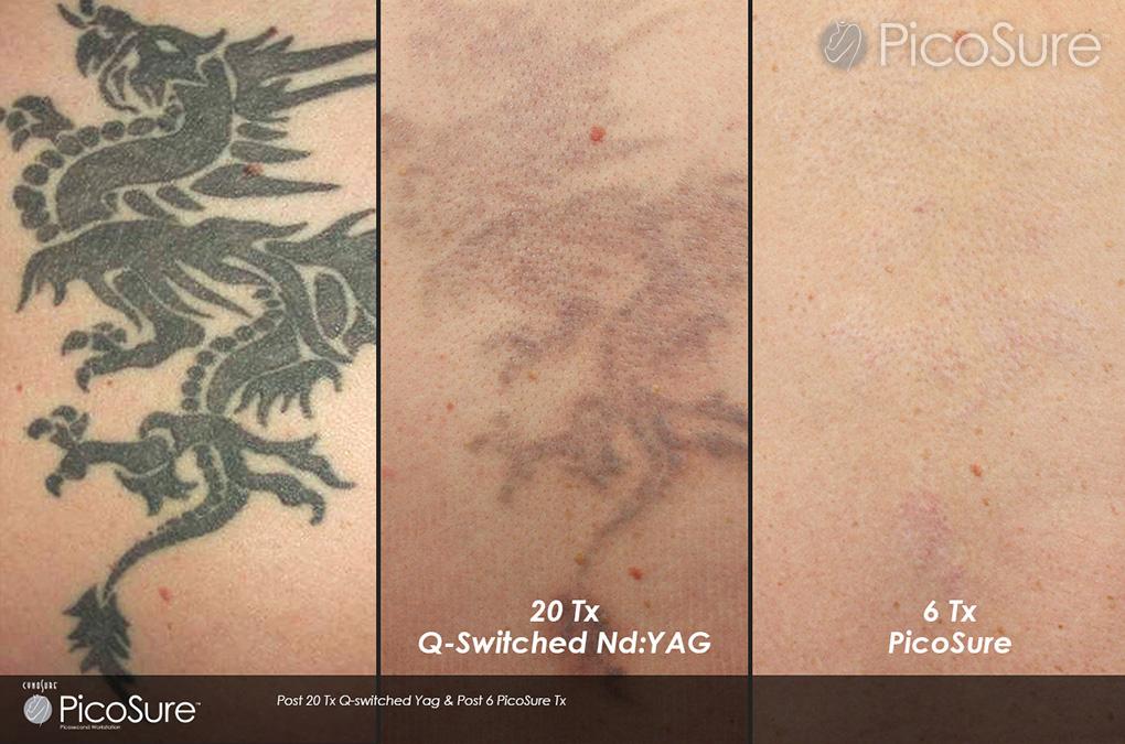 Laser Tattoo Removal Picosure Claritas Laser Clinic