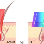 Claritas Laser Clinic, St Neots, Cambridgeshire | Laser Hair Removal | not IPL