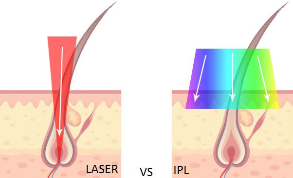 laser-vs-ipl