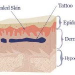 Claritas Laser Clinic, St Neots, Cambridgeshire | Laser Tattoo Removal