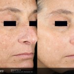 Claritas Laser Clinic, St Neots, Cambridgeshire | Skin Rejuvenation