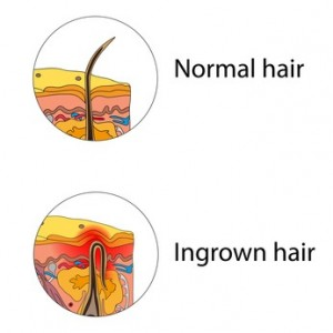 Ingrown and normal hair
